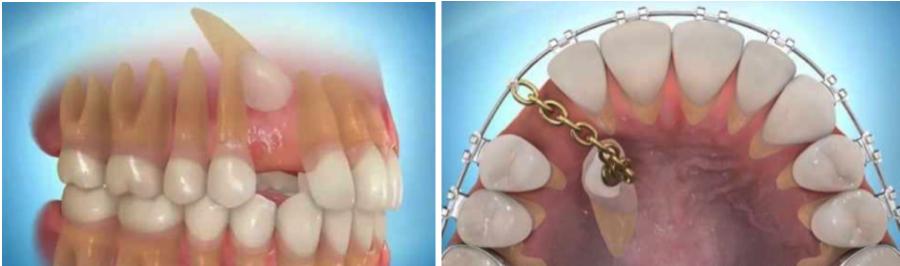 Soigner dent incluse